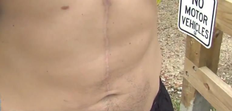 Dylan Davison mostrando la cicatriz de su operación (foto abc4news.com)