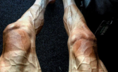 desgaste das pernas tour de france